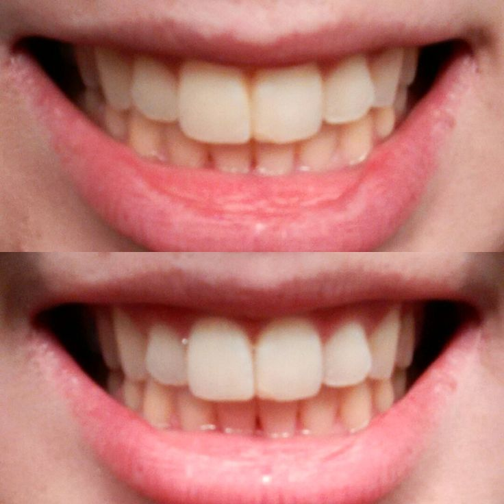 brighter white teeth whitening how to use
