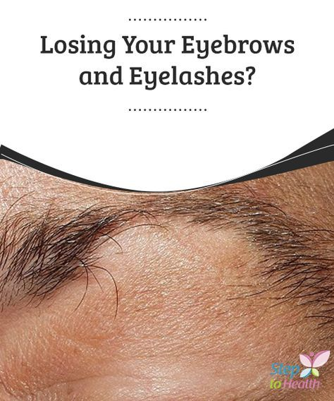 Losing Your #Eyebrows and Eyelashes? The #loss of hair ...