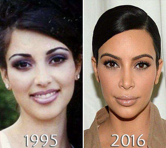 chirurgie laser kim kardashian conferință despre neuro-oftalmologie 2021