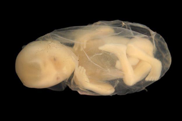 Week 34 van je zwangerschap | 24Baby.nl