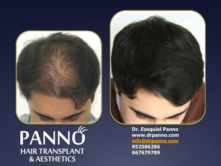 tienes el pelo fino? nuestra terapia regenerativa antialopecica lleva a tu pelo a su maxima exprecion de calidad brillo y volumen