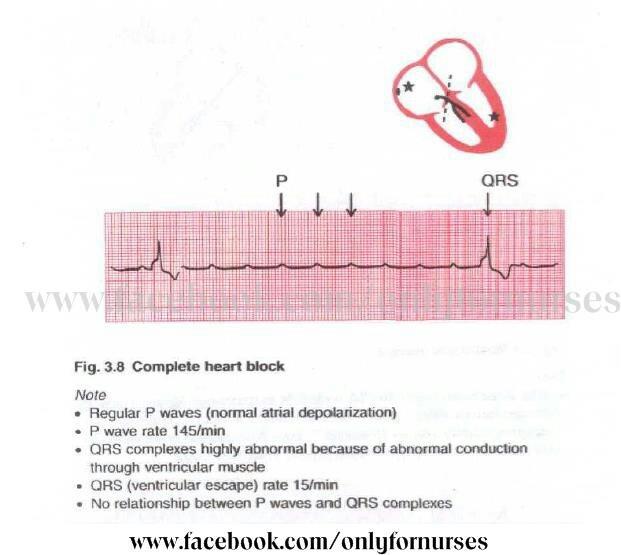 Congenital: Congenital Heart Block