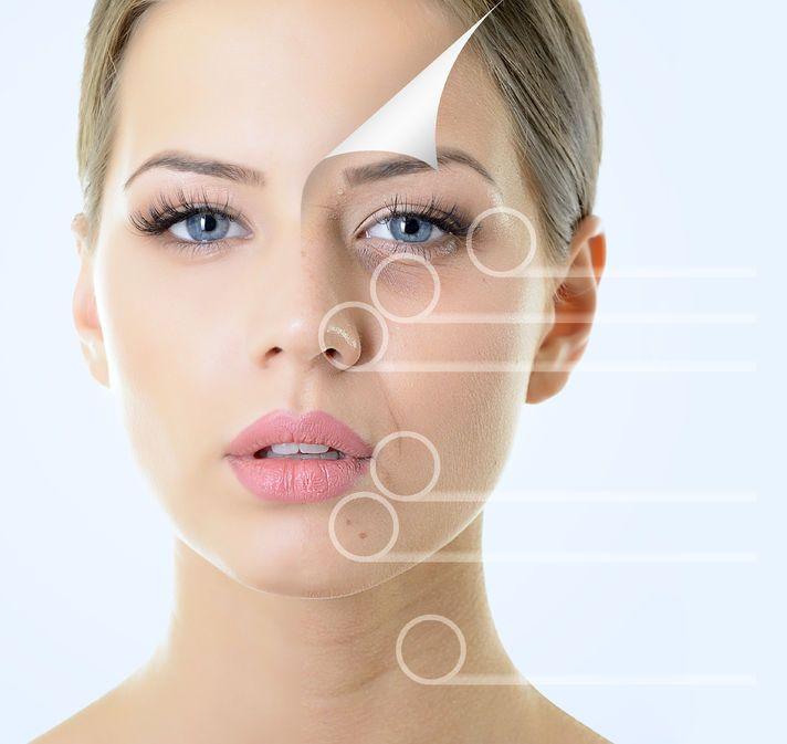 crema antiarrugas la mejor medicina natural