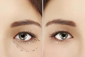 Cosmetic Treatment for Under Eye Bags
