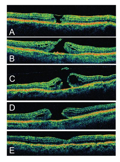 Review of Ophthalmology® > Revisiting Macular Holes