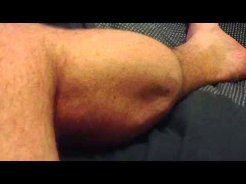 Tratamentul Carceilor Prin Metode Naturale si Foarte Eficiente | Secretele