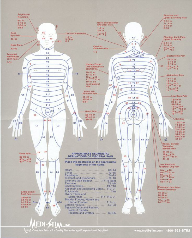 fibromyalgia pain diagram web application security architecture 23 best tens unit placement charts images on pinterest   chronic pain, physical therapy and ...