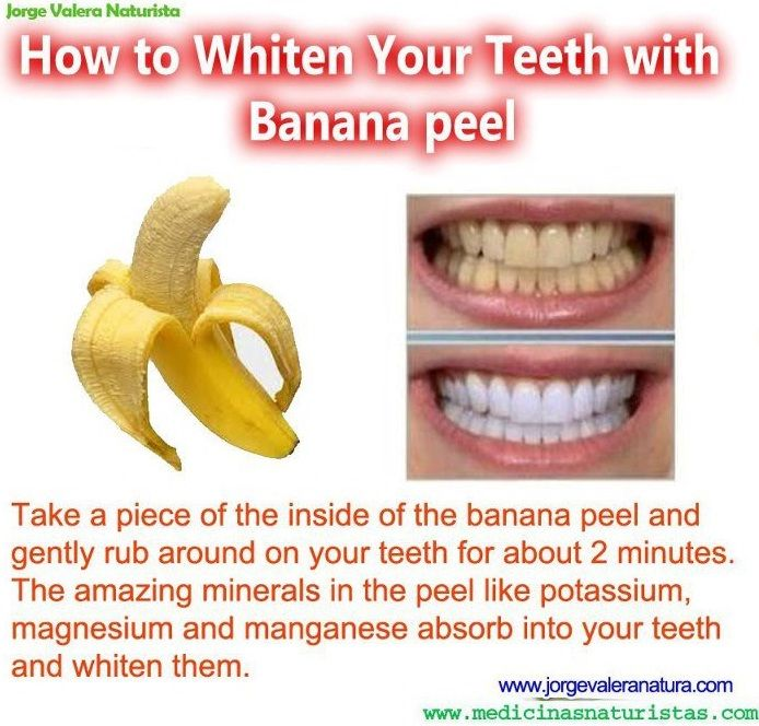 How to Whiten Your Teeth with Banana peel... Worth a try even if the results are not this dramatic
