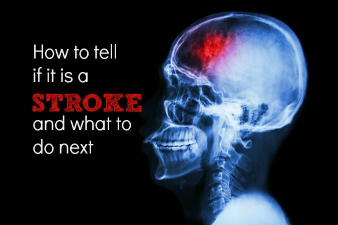 How To Tell If It's a Stroke — And What To Do Time is brain. Don't waste either. Here is how to tell if someone you know is having a stroke—and what to do next.