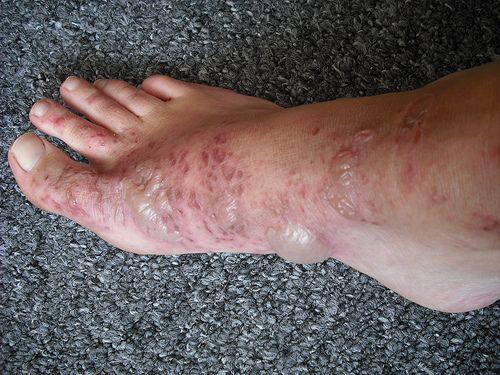 wild parsnip burns 10 days after