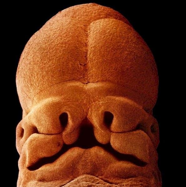 The face of a human embryo, 5 weeks. Not quite micro-- the size of an apple seed, but close enough...