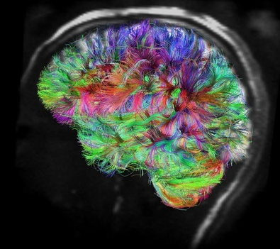 The Human Connectome Project: MRI scans of 1,200 people, including 300 pairs of twins, will be used to compile an atlas of communication routes throughout the brain. The resulting blueprint will also reveal how brain connectivity varies from person to person.