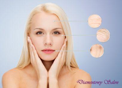 ZMARSZCZKI MIMICZNE (dynamiczne), to zmarszczki, które powstają wskutek często wykonywanych ruchów mięśni twarzy. http://diamentowysalon.pl/zabiegi/toksyna-botulinowa-typu-a/