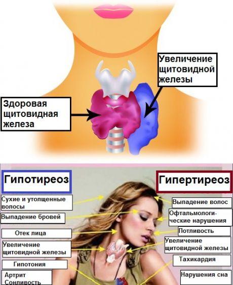 Щитовидная железа: как регулировать ее активность с помощью питания? - Шаг к Здоровью