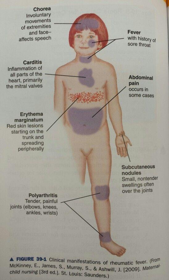 Clinical manifestations of #rheumatic #fever.