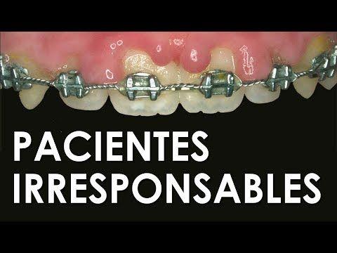 ORTOCERVERA / Ortodoncia: Técnica de enderezamiento de molares - YouTube