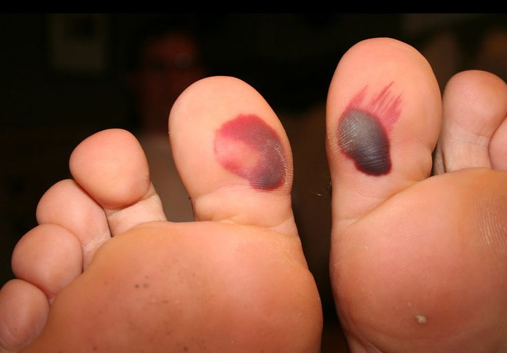 Blood blisters under big toes (image credit)