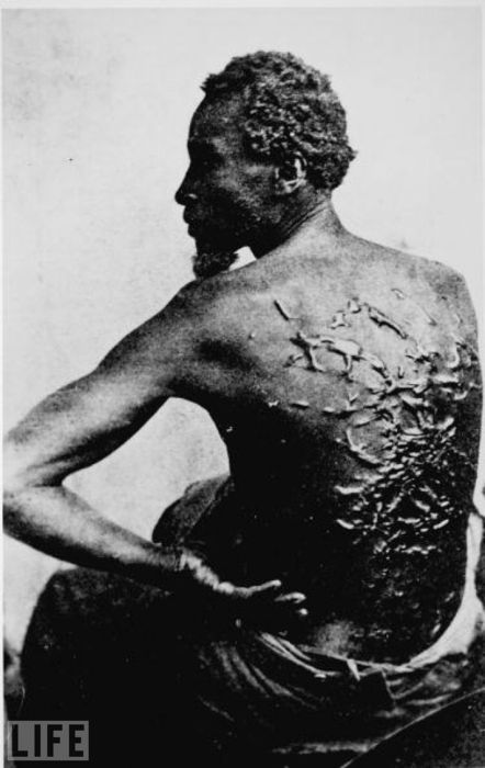 Pictured: A former slave reveals the scars on his back from whippings before he escaped to become a Union soldier.
