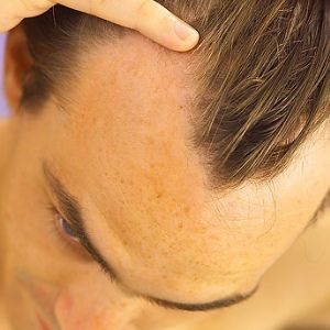 Natural Ways To Treat Male Baldness
