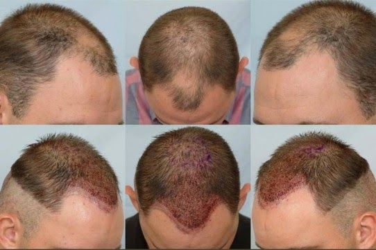 Hair colors - Hair care - hair loss - hairstyles - male pattern hair loss -  2015 hair colors: What are hair restoration treatments all about?