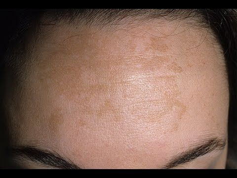 Home remedies for brown spots / How to get rid of brown spots - YouTube