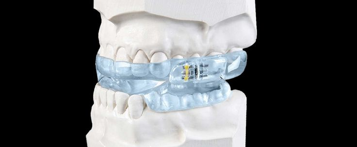 The ZQuiet Pro-Plus is an FDA cleared oral appliance for the treatment of snoring and mild to moderate obstructive sleep apnea.