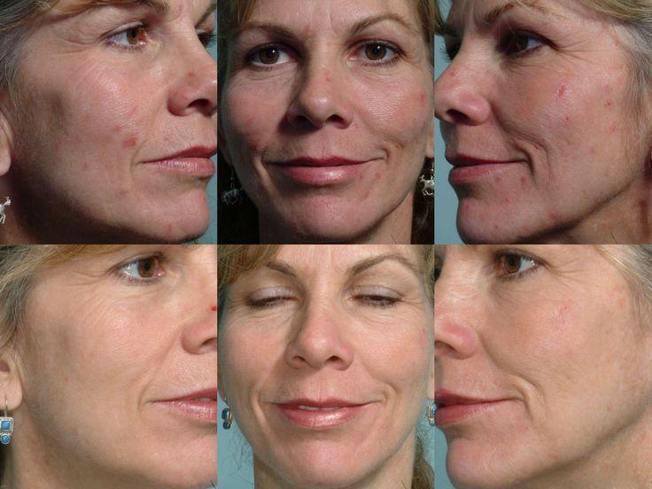 #acne #acnespots #skin #health #beauty #trend #fashion #skincare