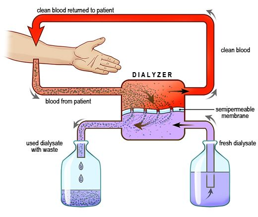 Diagram Showing The Hemodialysis Process  Blood From The