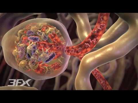 How Can Diabetes Cause Atherosclerosis?