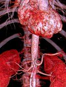 Abdominal Aorta, 3D Ct Scan