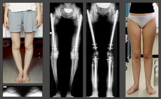 16 year-old patient who combined a quadruple torsion syndrome with genu varum and genu recurvatum. Correction of all deformities solved her problem (pain at climbing up stairs and running).