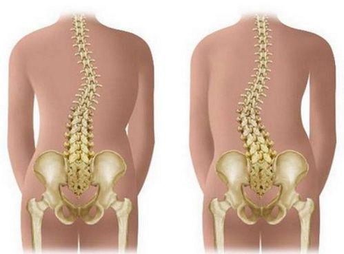 Сколиоз грудного отдела позвоночника – что это такое и как лечится. Диагностика искривления позвоночника, причины недуга, как его предупредить.