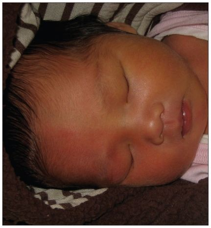 Attenzione però perché può essere un segno di allarme: ...in infants and children, impaired facial flushing (Harlequin sign) is often more apparent than anhidrosis. Cosa bisogna escludere?