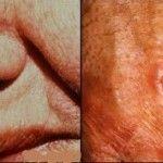 Cancerul cutanat de piele a devenit cel mai frecvent tip de cancer la om http://www.medpont.ro/dermato-venerologie/cancerul-de-piele/