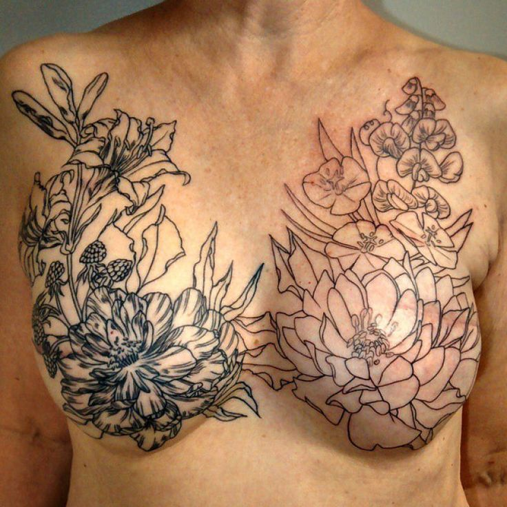 mastectomia_tatuagem_12