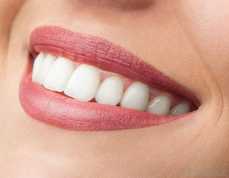 The best way to build smile muscles is to practice smiling and puckering your lips. You can also try keeping your lips closed and...