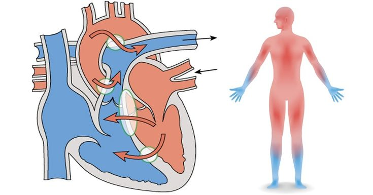 Do You Suffer from Poor Blood Circulation? Here is How to FIX IT Fast!