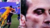 Godín: así le quedó el ojo tras agresión de Luis Suárez. 04/13/2016