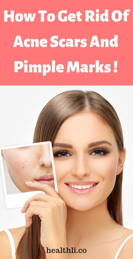 How To Get Rid Of Acne Scars And Pimple Marks !