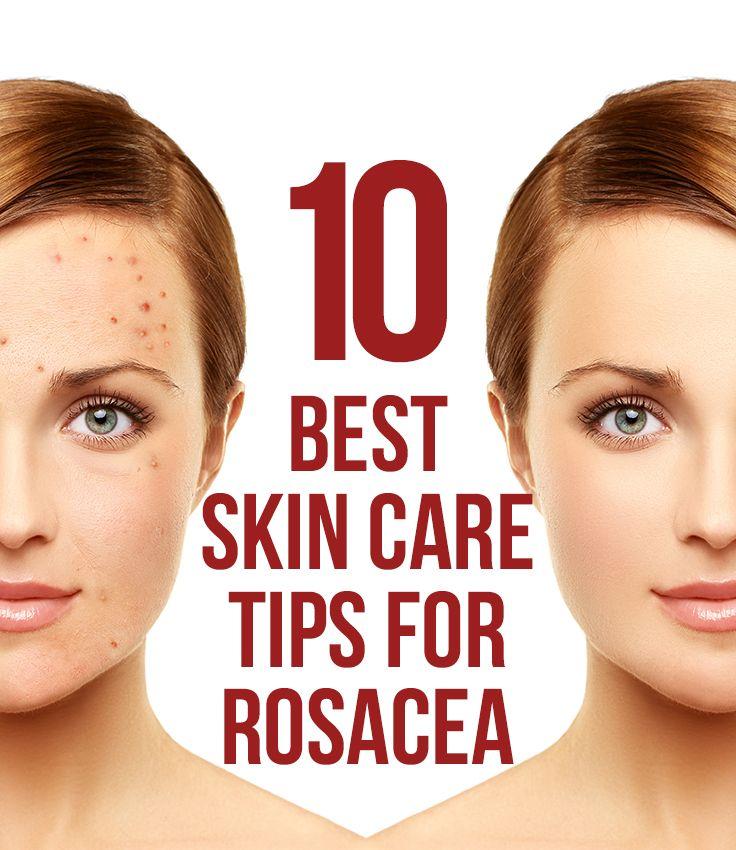 10 Best Skin Care Tips For Rosacea