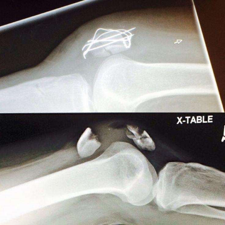 cracked knee cap nhs jobs