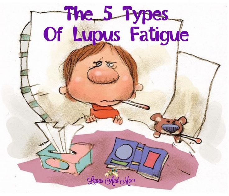 Lupus and flu like symptoms