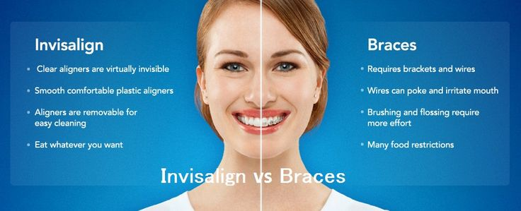 #Teeth #Straightening: a Complete Guideline for Your Teeth. Crooked teeth is the problem for many. Unlike your parents you can get rid of crowded teeth with the modern #dentistry with the help of #Invisalign and braces. Know which treatment is better for you or for your child's teeth.
