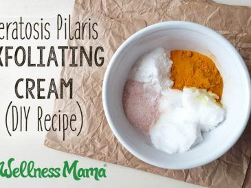 Keratosis Pilaris Exfoliating Cream-DIY Recipe