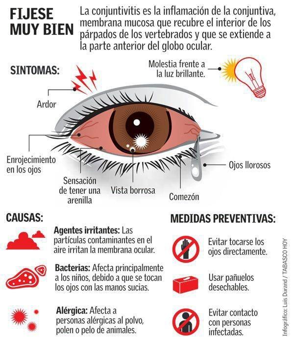 Infografía conjuntivitis: síntomas, causas y medidas preventivas