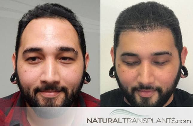 Hair Transplant Cost | Hair Transplant Before and After