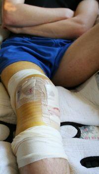 Some swelling, bruising and pain after ACL surgery is to be expected.  Find out more about the common problems experienced after ACL knee surgery