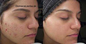 Na odstránenie kožných problémov existujú viaceré prírodné látky. Efektivita tejto zmesi dokonca prekvapila aj mnohých kožných lekárov.