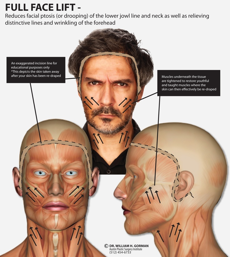 Full Face Lift Procedure by Dr William H Gorman (512) 4546733 - plastic surgery consultant sample resume