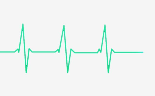 Rate Beat Electrocardiogram Heartbeat Clipart Heart Rate Heartbeat Png Transparent Image And Clipart For Free Download Clip Art In A Heartbeat Heart Rate